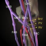 Percutaneous Valvulotomy as an Alternative to Transposition of a Brachiocephalic Fistula